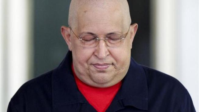 Nemocný Hugo Chávez