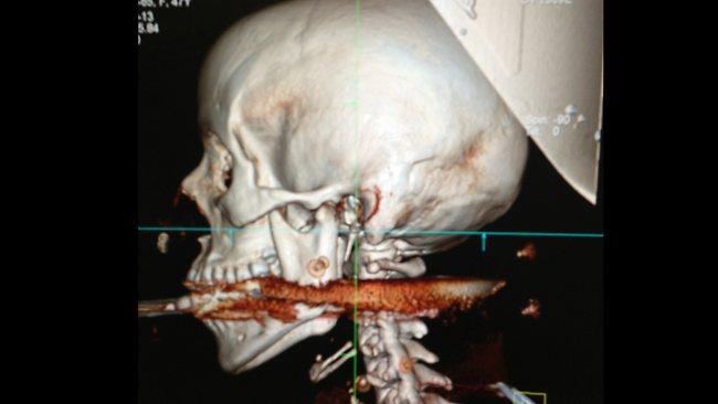 Manžel postřelil ženu harpunou přímo do úst. Přežila!
