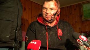 Dmytro Bulatov v zuboženém stavu