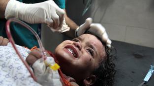 Palestinské dítě v nemocnici