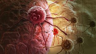 Nanočástice budou umět poznat mimo jiné i buňky rakoviny (na snímku)