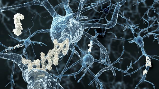 Poškozené bílkoviny beta-amyloid při Alzheimerově chorobě