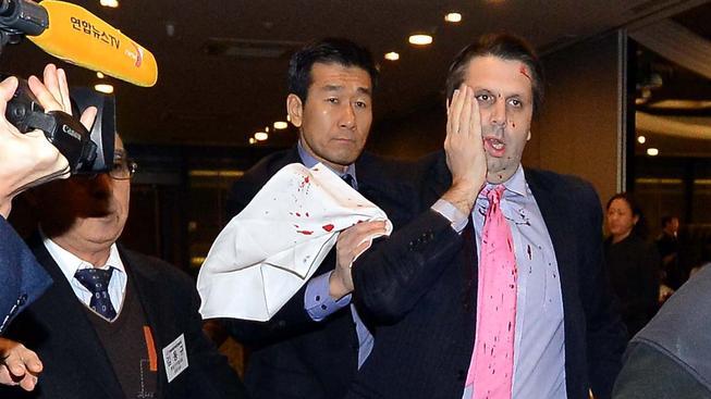 Útočník pořezal velvyslance v obličeji a na rukou