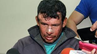 Gilberto Benitez Zarate podle policie znásilnil svou 10letou nevlastní dceru, který v důsledku toho otěhotněla