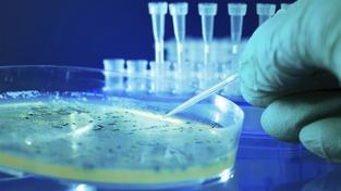 Analýza bakterií salmonely. Ilustrační foto