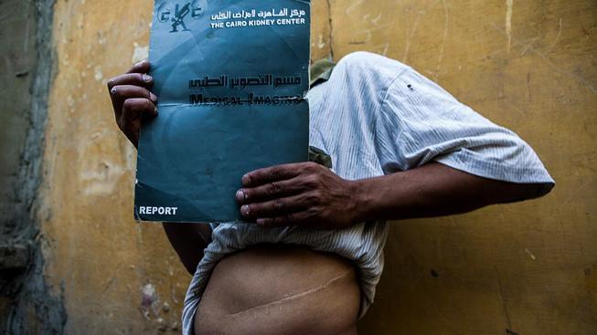 Je libo třeba ledvinu? Tento muž daroval svou ledvinu v káhirské klinice za 10 tisíc egyptských liber (v přepočtu 32 tisíc korun). Peníze potřeboval na auto
