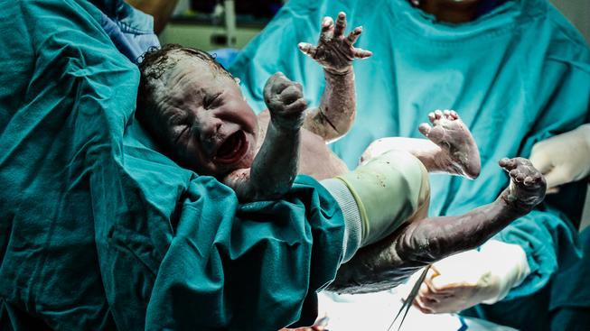 Mimo zdravotní zařízení se u nás narodí ročně zhruba 400 dětí
