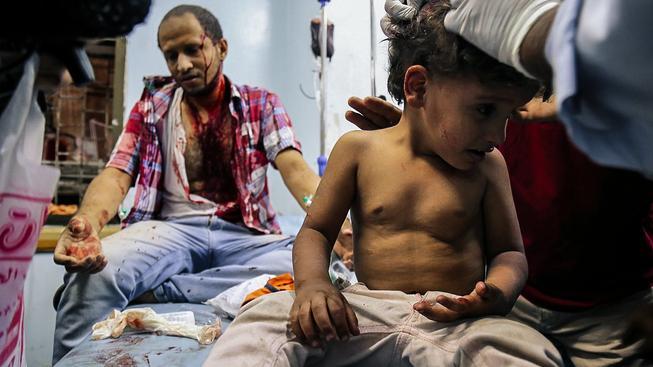V nemocnici v jemenském Táizzu