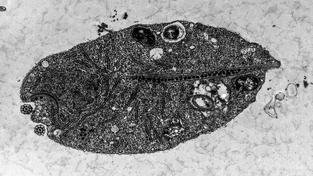 Přehledný snímek buňky Monocercomonoides kmen PA203 z transmisního elektronového mikroskopu