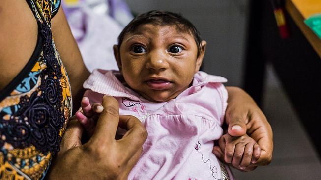 Světová zdravotnická organizace doporučila ženám v oblastech zasažených virem zika odložit těhotenství. S nemocí souvisí vývojové poškození mozku mikrocefálie