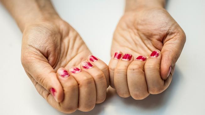 Kůže pod nehty je pro mikroby ráj. Ilustrační snímek