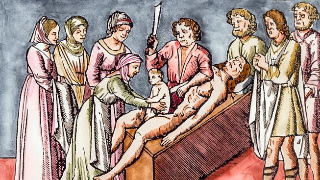 Císařský řez byl ještě v 19. století většinou pro ženu smrtelný. Ilustrační snímek