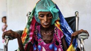 Tato jemenská dívka se jmenuje Saida Ahmad Baghili, je jí 18 let a trpí těžkou podvýživou