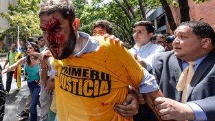 Opozičník  Juan Requesens po potyčce s příznivci vlády