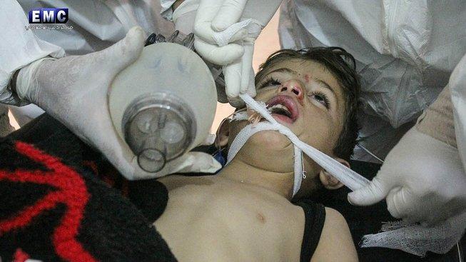 Lékaři ošetřují dítě zasažené při útoku v Idlíbu