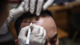 Příprava na transplantaci v turecké klinice