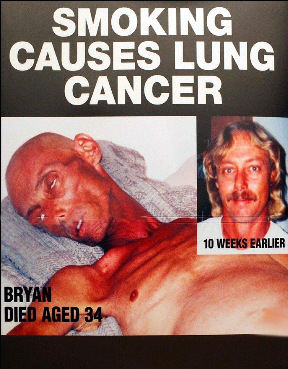 Varovné obrázky na krabičkách cigaret