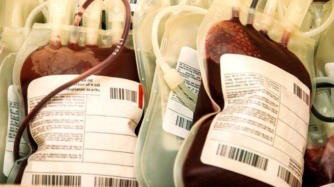 Vypovězený obchod s krevní plazmou může pro český stát znamenat ztrátu až 800 milionů dolarů. Ilustrační snímek
