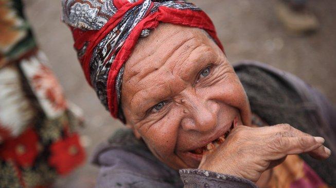 Žvýkání betelových ořechů a listů zbarví sliny do červena, zčernají po něm zuby a navíc často vede k rakovině úst. Ilustrační snímek