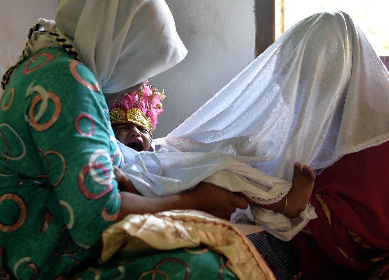 Ženská obřízka