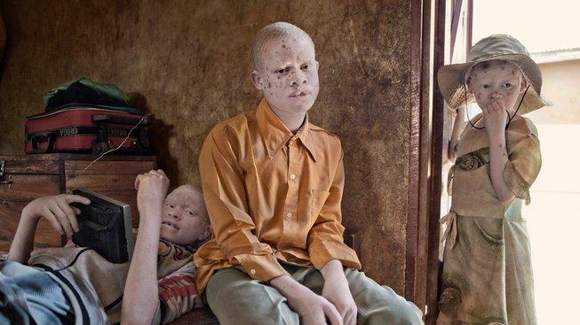 S albinismem je v řadě států Afriky spojeno mnoho mýtů, na základě kterých jsou jedinci jím trpící silně diskriminování.