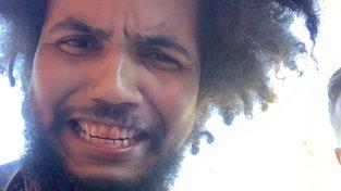 Poslanec Feri se zakrvavenými ústy