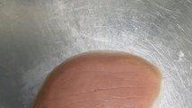 Rakovina obličeje