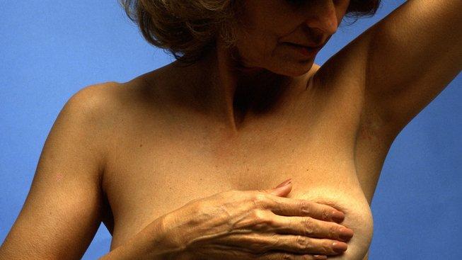 Lidé trpící hidradenitidou mají zánětlivá ložiska nejčastěji v podpaží, tříslech či pod prsy. Ilustrační snímek