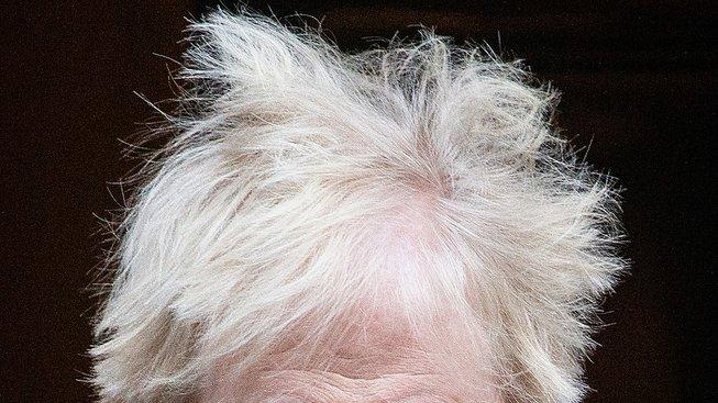 profimedia-0495428332 boris hairs