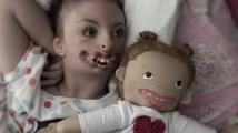 Panenky pro děti s postižením