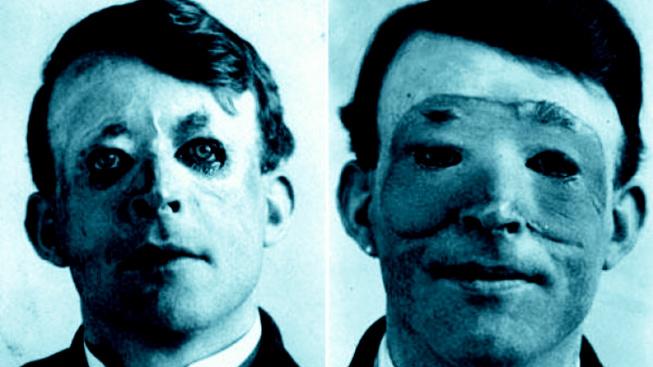 Walter Yeo byl prvním pacientem, který se podrobil plastické operaci obličeje