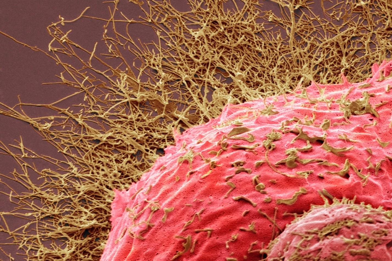 Chřipkový virus profimedia-0412256731 3 2