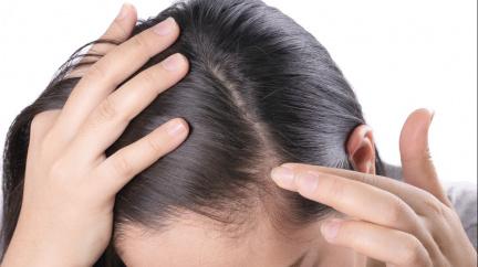 Vypadávání vlasů je problém, který trápí nejednoho člověka. Jak se s ním vypořádat?