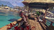 Dead Island Definitive Collection - Launch Trailer